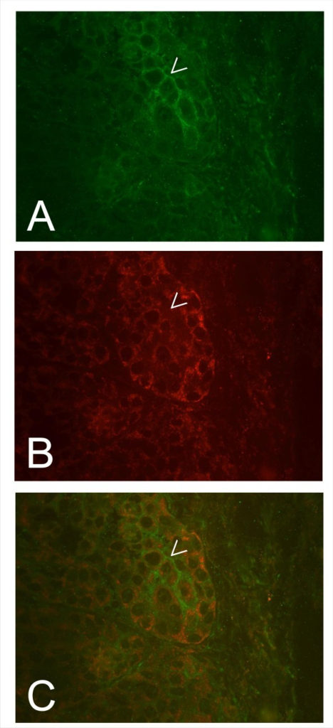 Photographs of simultaneous staining of 30 week old breast tumors arising in HER-2/neu transgenic mice illustrating that over expression of HER-2/neu correlates down regulation of htid. ErbB-2 was detected using a polyclonal chicken anti rat ErbB-2 and a FITC labelled secondary antibody. Tid was detected using the rabbit polyclonal anti hTid antibody [6,7,13] and a Texas Red labelled secondary antibody. The tumor cells over expressing ErbB-2 (A, arrowhead) are characterized by low tid expression (B, arrowhead; cf. Figure 3). In C an overlay of the photographs shown in A and B is presented.