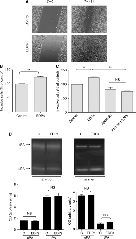 Elastin-derived peptides stimulate B16F1 migration (A) and invasion (B). Invasion involves the plasminogen system (C) without inducing tPA or uPA (D). (A) B16F1 cells have been seeded in 12-well plates and a homogeneous wound was created in each well by scraping cells with a tip. Cells were stimulated or not for 48 h with 50 μg ml–1 EDPs and cell migration was evaluated by videomicroscopy. (B) Cellular invasive potential was assayed using Transwell coated with Matrigel (40 μg per well). In total, 50 × 103 cells in 100 μl of RPMI 1640 with or without EDPs (50 μg ml–1) were deposited into the upper chamber. The lower chamber contained 10% FBS and 2% of BSA. Incubation was for 40 h. Data are expressed as mean±s.e.m. values from three independent experiments, each performed in triplicate. **Significantly different at P<0.01. (C) is same as (B) except for the presence or not of aprotinin (100 μg ml–1). **Significantly different at P<0.01. NS=nonsignificantly different. (D) Upper panel: Gelatin plasminogen zymography was performed as described in the Materials and Methods section. The gels presented are representative of several in vitro (n=3) and in vivo (n=5) experiments. Lower panel: Quantification of in vitro and in vivo expressions of tPA and uPA was carried out using densitometry and calculating using Quantity One Software. C=untreated control; EDPs=EDP-treated cells or tumours; NS=nonsignificantly different.