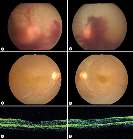a, b Fundus photographs at 4 months after the re-administration of G-CSF therapy of the right (a) and the left (b) eyes showed vitreous hemorrhages. c, d Recent fundus photographs showed marked decrease of neovascularization and cystoid macular edemas in the right (c) and the left (d) eyes. e, f Optic coherence tomography demonstrated a cystic change of macula in the right eye (e) and epiretinal membrane and serous detachment in the left eye (f).
