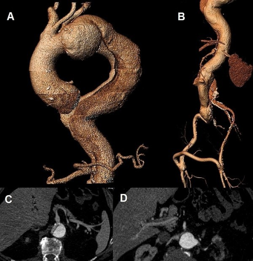 Pre-operative images of the aorta. (a.) 3D CT reconstruction demonstrating the dissecting type B aneurysm and the dilatation of the arch and ascending aorta (b.) 3D CT reconstruction image of the dissected abdominal aorta and the patent femoro-femoral bypass graft (c.) Axial CT image showing the origin of the celiac trunk from the true lumen (d.) Axial CT image demonstrating the origin of the left renal artery from the false lumen and right renal artery from the true lumen.