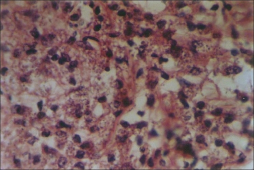 H and E shows macrophages containing leishman donovan bodies