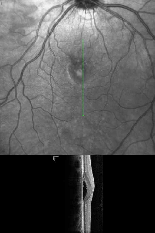 Fundus photograph and optical coherence tomography of the left eye of Patient 1, 19 days after PRK, showing serous retinal detachment consistent with CSCR.