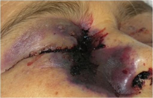 prednisone ecchymosis
