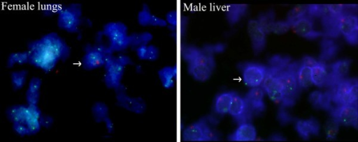 Microchimeric cells found in female and male samples. Red-dUTP and Green-dUTP (Abbott Molecular, USA) were used as fluorophores for the Y and X probes, respectively. FISH analysis on female lungs and male liver using probes for the X (green signal) and Y (red signal) chromosomes. Cell nuclei were counterstained with DAPI (blue). Arrows indicate microchimeric cells. FISH images of male and female cells were recorded using a Zeiss Axioplan 2 fluorescence microscope, a high-sensitivity integrated CCD camera and dedicated software (ISIS, MetaSystems, Germany).