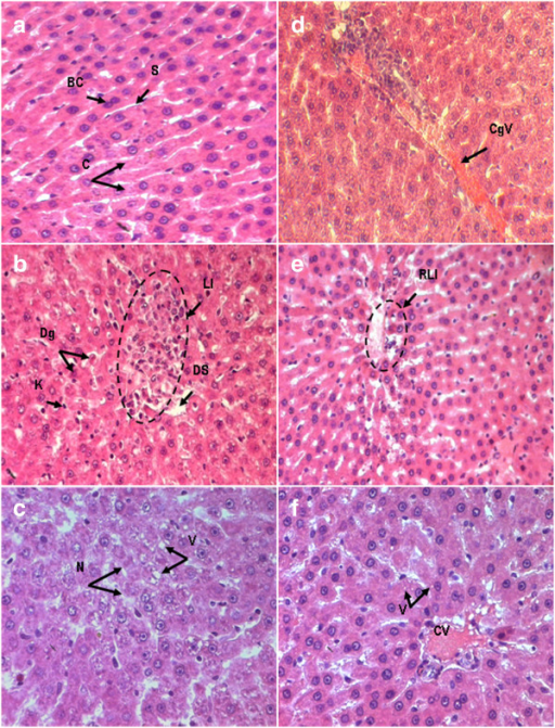 Light Micrographs Of Rat Liver Tissue Stained By Hemato Open I
