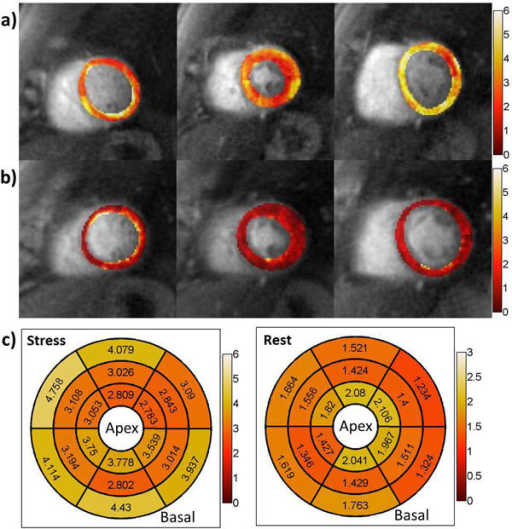 Pixel-wise MBF maps at stress (a) and rest (b), as well as the segment MBF results (c) from the patient with suspected MCD.