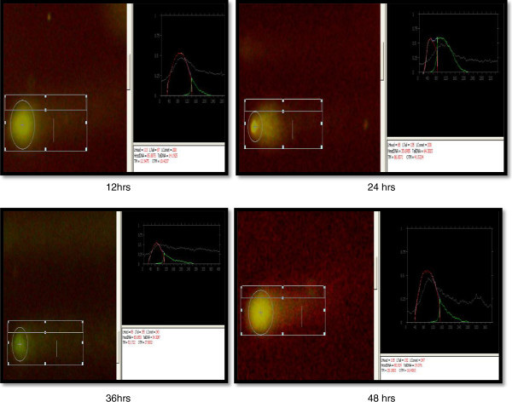 Comet assay of coelomocytes after exposure to 50-nm ZnO NPs (5 mg/l) at different intervals.
