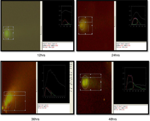 Comet assay of coelomocytes after exposure to 100-nm ZnO NPs (5 mg/l) at different intervals.