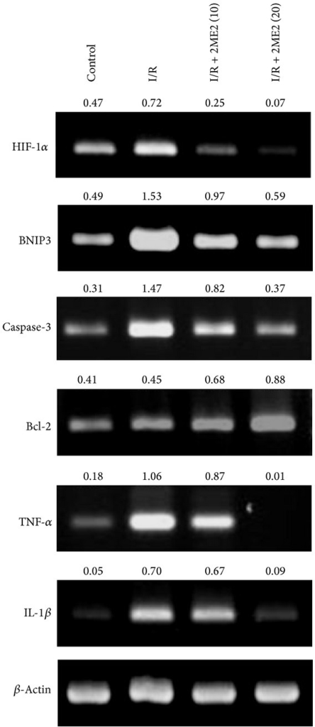 2ME2 reduced HIF-1α, BNIP3, caspase-3, Bcl-2, TNF-α, and IL-1β expression. Gel photographs depicting mRNA expression of HIF-1α, BNIP3, caspase-3, Bcl-2, and the cytokines TNF-α and IL-1β, using RT-PCR in renal tissue extracts from mice treated with saline or I/R-only or I/R+2ME2 (10 mg/kg) or I/R+2ME2 (20 mg/kg). β-Actin was the internal control. The ratios of HIF-1α, BNIP3, caspase-3, Bcl-2, TNF-α, and IL-1β to β-actin are shown (numbers above the top three panels), respectively. Data are representative of three independent experiments.