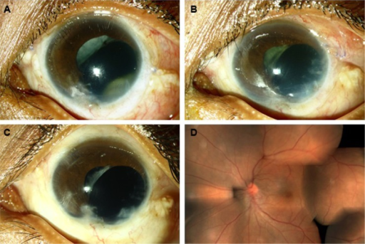Clinical photographs of case 1.Notes: (A), ball of fungal exudates visible through pupil 2 months following open globe injury repair and vitrectomy. (B) partial response and reappearance of exudates following treatment with intravitreal voriconazole. (C), rapid and complete resolution of exudates with combined antifungal treatment observed at one week. (D), fundus photograph 3 months after resolution of endophthalmitis.