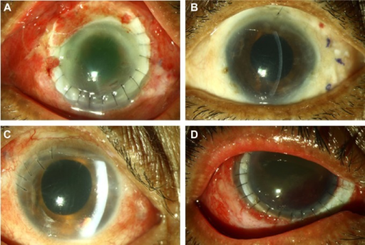 (A–D) Postoperative clinical photographs after resolution of endophthalmitis following vitrectomy, intravitreal antifungal combination therapy (amp-Vo regimen), and adjuvant procedures.