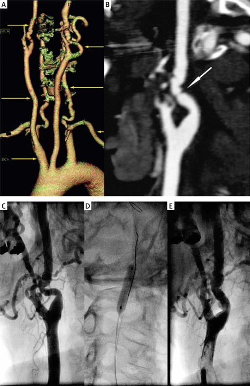 A 63-year-old female patient with hypertension and history of ST elevation anterior myocardial infarction presented with bilateral, asymptomatic ICA stenosis. A, B – CT angiography. A – 3D aortic arch reconstruction. B – vertical section of proximal RICA showing focal critical artery narrowing (arrow). C, D, E – catheter angiography. C – significant RICA stenosis caused by FMD. D – angioplasty with 4.0 × 20 mm balloon with a distal neuroprotection system. E – optimal immediate result of balloon angioplasty, no need for stent implantation