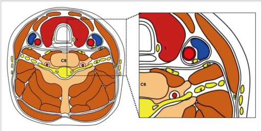 Schematic drawing of transverse section of neck at C6 level.Relationship of neck nerves to adjacent anatomic structures is shown. 1 = recurrent laryngeal nerve, 2 = vagus nerve, 3 = cervical sympathetic ganglion, 4 = cervical/brachial plexus, 5 = spinal accessory nerve, 6 = phrenic nerve
