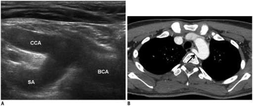 Normal and absence of brachiocephalic artery.A. Normal division of BCA into CCA and SA is called Y sign. B. In patients with non-recurrent laryngeal nerve, right aberrant SA (arrow) arises directly from aortic arch. BCA = brachiocephalic artery, CCA = common carotid artery, SA = subclavian artery