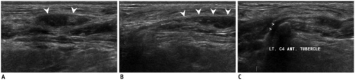 Ultrasonography (US) images of traumatic neuroma.A. Transverse US image shows oval, heterogeneously echoic solid nodule (arrowheads) in left neck. B, C. Tracing of nodule in superior and medial directions shows direct continuity with cervical nerve (arrowheads) emerging from groove of transverse process. ANT = anterior, C4 = fourth cervical spine, LT = left