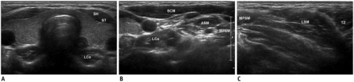 Transverse ultrasonography images of neck muscles.A-C. Muscles are basic anatomic structures for understanding thyroid and neck anatomies. ASM = anterior scalene muscle, LCo = longus colli muscle, MPSM = middle and posterior scalene muscles, SCM = sternocleidomastoid muscle, SH = sternohyoid muscle, ST = sternothyroid muscle