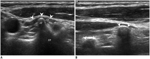 Transverse and longitudinal ultrasonography images of TP.(A) Relationship with LC (arrowheads) and (B) successive features on longitudinal images easily differentiate TP (arrowheads) from calcified lymph node. AT = anterior tubercle, LC = longus capitis muscle, TP = transverse process