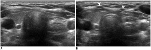 Transverse ultrasonography (US) images of anterior jugular vein.A. Anterior jugular vein can be easily collapsed by US probe, and is not visible. B. Therefore, operators should apply soft pressure to identify anterior jugular veins (arrowheads).