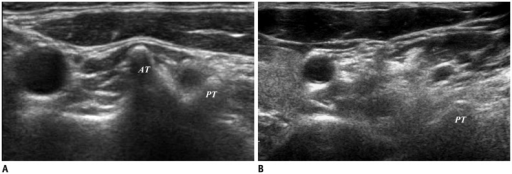 Transverse ultrasonography images of C6 and C7 transverse process.A. Anterior tubercle (AT) of C6 transverse process is prominent. B. AT of C7 transverse process is absent. PT = posterior tubercle