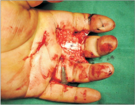 Thirty minutes after the local anesthesia injection, the epinephrine takes effect. The skin of the operative field has turned pale. The wound was exposed through a Bruner incision, and the distal half of the A2 pulley was incised through the volar midline. The proximal end of ruptured tendon was found in a small incision in the distal palm and advanced under the preserved A1 and the proximal part of the A2 pulleys. This flexor digitorum profundus tendon shown was repaired with a 6-strand M-Tang technique.
