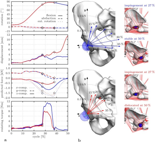 Impact of muscle element removal emulating a posterior surgical approach on HiL-simulated THR load situation with focus on the sitting down phase of the deep maneuver.The HiL simulations are based on parameter sets ②, ③ from Table 1. a Comparison between the intact (blue lines) and the resected (red lines) case for hip joint rotations q3, q1, q2, measured displacement /c/ between femoral head and acetabular cup, components of the predicted reaction force fr given in the pelvic reference frame [49], and measured resisting torque /τf/. Impingement occurs at ○ and dislocation at ◇. b Direction of the hip joint reaction force with respect to the frontal plane of the pelvic reference frame [49] with illustration of the head position at and after impingement for the intact (above) and the resected (below) case.