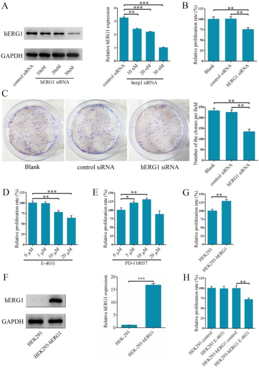 Knockdown of hERG1 reduces proliferation of osteosarcoma cells. (A) Efficiency of knockdown by hERG1-siRNA was measured by Western blot. (B-E) Proliferation of MG-63 cells transfected with hERG1-siRNA (30 nM) (B and C), or treated with hERG1 inhibitor E-4031 (D) or activator PD 118057 (E) was measured using CCK-8 or colony formation assay (n = 6). (F) Protein expression of hERG1 in HEK293-wt and HEK293-hERG1 cells was detected by Western blot. (G) 1 × 105 HEK293-wt and HEK293-hERG1 cells were cultured for 48 h and the CCK-8 assay was performed. (H) The effects of E-4031 on the proliferation of HEK293-wt and HEK293-hERG1 cells were determined by CCK-8 assay. * P < 0.05, ** P < 0.01, *** P < 0.001.