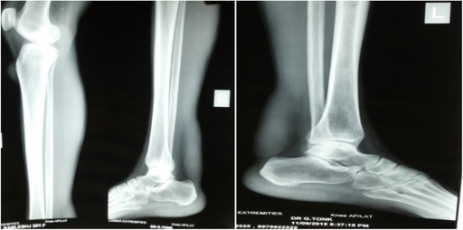 X-ray showing soft tissue thickening of bilateral tendo-Achilles