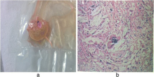 a Gross – excisional biopsy specimen from right infrapatellar tendon xanthomas measuring 2×2×1 cm with gray, brown, soft tissue. b Microscopic analysis – showing foamy cells admixed with inflammatory cells and giant cells surrounding cholesterol clefts