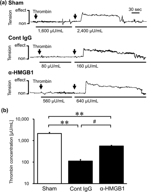 Effect of anti-HMGB1 mAb on the contractile response to thrombin on the isolated BA from SAH rats.The BA was isolated at 48 hr after the SAH in rats administered anti-HMGB1 mAb or control IgG at both 5 min and 24 hr after blood injection. (a) Tension responses to thrombin stimulation in a BA segment are shown as representative recordings. Arrows show the time point of accumulative thrombin addition. Solid lines under the recording waveform indicate the stimulating phase at the indicated concentration of thrombin. (b) The minimum concentration of thrombin stimuli required for the initial contractile response was evaluated. Results are shown for the sham group (Sham, n = 3), the control IgG-treated group (Cont IgG, n = 5), and the anti-HMGB1 mAb-treated group (α-HMGB1, n = 5). Values represent the means ± SE. **P < 0.01 compared with the sham group. #P < 0.05 compared with the control IgG-treated group.