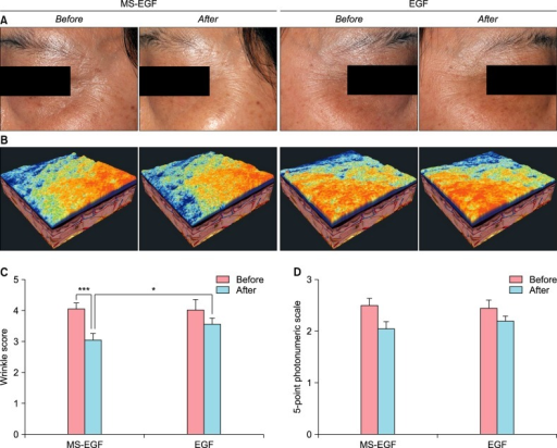 Clinical outcome of periocular wrinkle using digital skin image and wrinkle score. (A) Photographs showing clinical improvements of periocular wrinkles. One photograph was taken at baseline (left) and the other was taken 8 weeks after (right). (B) Three-dimensional analysis images of baseline (left) and 8 weeks after (right). Red color indicate upper high and blue color indicates lower high. (C) Wrinkle score using skin image analysis. (D) Wrinkle score using 5-point photonumeric scale. MS-EGF: micro-spicule containing epidermal growth factor, EGF: epidermal growth factor. *p<0.05, ***p<0.001.