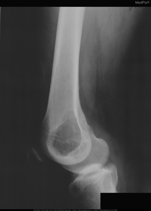 See case description (lateral view)