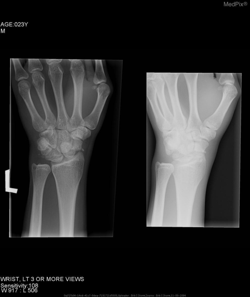 "AP and oblique views of the left wrist demonstrate unusual architecture of the carpal bones, with fracutes through the waist of the scaphoid and a comminuted fracture of the triquetrum.  Note the foreshortened, ""pie-shaped"" lunate. Distal radius is intact."