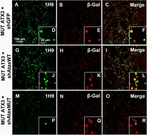 Allele-specific silencing of mutant human ataxin-3 in rat brain.A) Laser confocal microscopy, showing neuronal transduction 2 months after injection in the rat striatum with recombinant lentiviral vectors encoding shAtaxMUT (n = 7), shAtaxWT (n = 8) or shGFP (n = 4) and mutant human ataxin-3 (MUT ATX3). The viral vectors also contained a separate PGK-LacZ cassette encoding β-galactosidase, to facilitate the detection of infected neurons (B, H, N and E, K, Q, high magnification). In adult rats expressing MUT ATX3 and shAtaxMUT (n = 7), the number of neurons containing MUT ATX3-positive aggregates was much smaller (M) and the high magnification merged image (R) indicates that the few cells positive for MUT ATX3 did not express the lacZ reporter gene present in the shAtaxMUT vector. These cells were therefore not transduced with the vectors encoding the silencing sequences. By contrast, in animals expressing MUT ATX3 and shGFP (n = 4) or the control shAtaxWT (n = 8) (A and G, respectively) high magnification merged images show many MUT ATX3-positive cells simultaneously expressing the lacZ reporter gene present in both shAtaxWT or shGFP (F and L, respectively). The figure shows representative images of immunohistochemical stainings that were reproducible among the different groups.