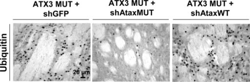 Reduction of ubiquitin-positive inclusions in the striatum of adult rats as result of mutant human ataxin-3 knock-down.Animals infected with MUT ATX3 and the control shGFP (left; n = 4) or shAtaxWT (right, n = 8) show the accumulation of ubiquitin-positive inclusions, typical biomarkers of neuropathology, whereas no such accumulation is observed in animals co-infected with MUT ATX3 and the selective shAtaxMUT (middle, n = 7). The figure shows representative images of ubiquitin immunohistochemical stainings that were reproducible among the different groups.