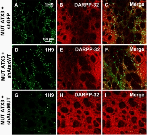 Rescue of DARPP-32 immunoreactivity and reduced accumulation of ataxin-3 inclusions upon shAtaxMUT expression.A–I) Laser confocal microscopy showing the expression of recombinant lentiviral vectors expressing MUT ATX3 and shGFP (n = 4), shAtaxWT (n = 8) or shMUT (n = 7) and its effects on DARPP-32 expression in the rat striatum 2 months post-injection. Slight DARPP-32 downregulation is observed in striatum infected with MUT ATX3 and the selective shAtaxMUT (H and the merged image I), whereas a significant loss of DARPP-32-immunoreactive neurons is observed in rat striatum co-infected with MUT ATX3 and shAtaxWT (E and the merged image F) or MUT ATX3 and the control shGFP (B and the merged image C). The figure shows representative images of immunohistochemical stainings that were reproducible among the different groups.