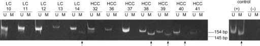 Detection of aberrant p16INK4A methylation (sample numbers 14, 38, 39 and 40, as indicated with arrows) in the sera of patients with liver cirrhosis (LC) and hepatocellular carcinoma (HCC). U, unmethylated; M, methylated; bp, base pairs.