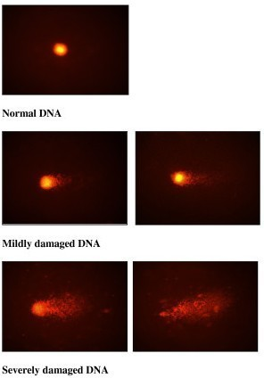 Figure 1 shows normal DNA and the different degrees of DNA damage as observed in comet assay.