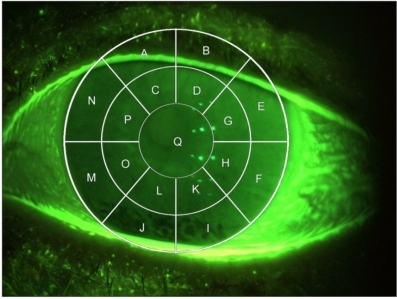 Corneal transect grid used to score corneal regions.