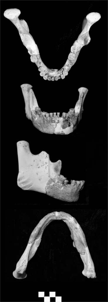 Longlin 1 mandible (scale bar = 1 cm).
