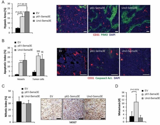 Uncl-Sema3E anti-angiogenic activity leads to tumour hypoxia and apoptosisTissue sections from tumours formed by MDA-MB435 control-EV cells, or cells overexpressing Uncl-Sema3E or p61-Sema3E, were stained with pimonidazole (PIMO, green) to reveal hypoxic areas (n = 5; see Materials and Methods Section) and for the endothelial marker CD31 (red); nuclei were stained with DAPI. Data are given as percent fraction of PIMO+ area/total area.Sections of the same tumours as above were immunostained for cleaved caspase 3 (green), CD31 (red) and DAPI. Uncl-Sema3E and p61 expression enhanced the apoptotic index (number of cleaved Casp3 positive cells/total cell number). The graph indicates mean values ± SD (n = 5); ***p = 5.9E−11; **p = 0.0046; §§§p = 1.9E−09; §§p = 0.0025.Sections of the same tumours as above were analyzed by immunohistochemistry to reveal the mitotic nuclear marker Ki67, followed by hematoxilin counterstaining. No significant difference was detected between samples. Scale bars (throughout this figure): 100 µm.Superficial metastatic colonies in the lungs of mice bearing the same tumours as above (n = 5 per each experimental group) were counted under a stereomicroscope after airways infusion with ink. Unlike what seen with p61, Uncl-Sema3E did not promote tumour metastatic spreading.