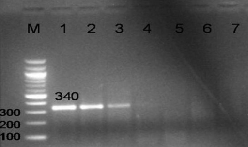 PCR amplification of 340 bp region in 38 kDa gene of M. tuberculosis using KD1 and KD2 primers exhibiting the analytical sensitivity of PCR. Lane M- DNA ladder, Lanes 1 to 6 - 100 pg, 10 pg, 1 pg, 100 fg, 10 fg, 1 fg of MTB DNA, respectively, Lane 7- Neg control.