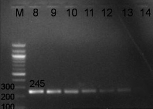 PCR amplification of 245 bp region in insertion sequence, IS6110, of M. tuberculosis using INS 1 and INS 2 primers exhibiting the analytical sensitivity of PCR. Lane M- DNA ladder, Lane 8 to 13- 100 pg, 10 pg, 1 pg, 100 fg, 10 fg, 1 fg of MTB DNA, respectively, Lane 14- Neg control.