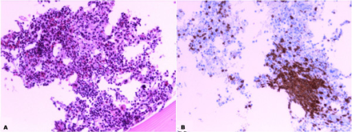 Peripheral T- cell Lymphoma infiltration, bone marrow biopsy: A) hematoxylin and eosin morphology 20X magnification;B) CD 3 Immunopositivity shows infiltration by neoplastic T cells 20X magnification.