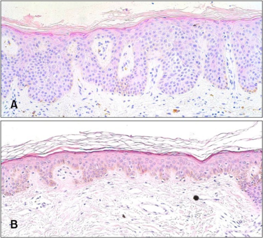Histological clearance of Bowen disease following pretreatment with a ablative CO2 fractional laser following methyl aminolevulinate-photodynamic therapy (MAL-PDT) (H&E, ×200). (A) Before treatment, (B) after treatment.