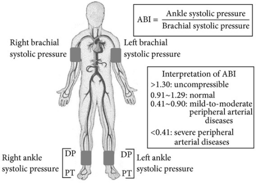Measurement of the ankle-brachial index (ABI). DP indic ...
