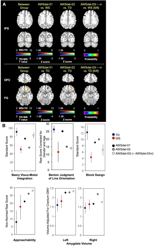 Gray matter volumes and cognitive profiles of typical WS, TD, and atypical deletion (AWSdel) individuals.A. Gray matter deviation maps in AWSdel individuals. First column represents VBM between group differences between WS (N = 42) and TD (N = 40). Second and third columns represent the degree to which atypical cases AWSdel-01 and AWSdel-02 deviated from the comparison group (thresholded at [z]>1.96). The fourth column represents probability maps of how many participants showed positive deviation of z > 1.96 in AWSdel-03i∼vi. Numbers in square-brackets in the fourth column indicate how many participants out of the total of 6 AWSdel-03 participants showed this deviation in its peak voxel. B. Cognitive measures and amygdala volumes (from manual volumetric measurements) are plotted for WS, TD and AWSdel groups. See Table 1 for detailed statistics. Benton judgment of line and Social approachability scores are not plotted for the AWSdel-03 children (WSdel-03ii∼vi) as age-adjusted normed scores are not available. IPS: intraparietal sulcus, OFC: orbitofrontal cortex, FG: fusiform gyrus, Lt: left, Rt: right. Error bars represent standard deviation. Left hemisphere is shown on the left side in the brain maps.