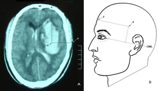 Brain CT scan slice with the maximum hematoma area above the outer canthus-meatus line (OML) with the puncture point shown. A: brain CT. Extension lines from the center (C) of the hematoma vertically and horizontally outward to the frontal (F) scalp and temporal puncture (P) point are represented by CF and CP, respectively. Here, CF is parallel to the median sagittal line (M), and CP is perpendicular to CF. P is the puncture point. Puncture depth is the distance between C and P. B: a diagram of the puncture point on the body surface. Here, the distance from F to P is equal to the CF line and parallel to the OML. The vertical length from the OML to P on the body surface is equal to the height (mm) from the OML to the maximum hematoma slice on the CT film.