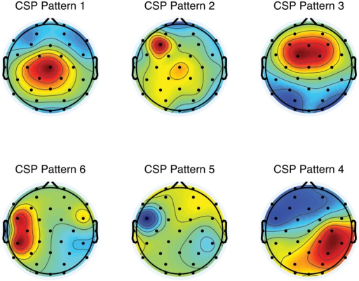 Common Spatial Pattern MapsThe Figure Illustrates A Se Openi Simple Spatial Pattern