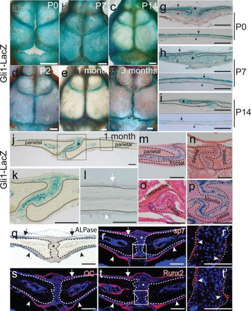 Gli1+ cells are restricted to the suture mesenchyme of craniofacial bones and are undifferentiated cells. (a-f) Whole mount LacZ staining (blue) of calvarial bones of newborn (P0), 7, 14 and 21 day old (P7, P14, P21) and one- and three-month-old Gli1-LacZ mice. (g-i) LacZ staining of sections of sagittal sutures and parietal bones of P0, P7 and P14 mice indicates Gli1+ cells are present in the suture mesenchyme (asterisks), periosteum (arrows) and dura (arrowheads). (j-l) LacZ staining of sections of the sagittal suture of one-month-old Gli1-LacZ mice. Asterisk indicates exclusive Gli1 expression within the suture mesenchyme. No positive staining is detectable in the periosteum (white arrow) and dura (white arrowhead). Boxed areas in j are displayed in k and l. (m-p) LacZ staining of the mid-suture mesenchyme in the coronal (m), interpalatal (n), presphenoid-palatal (o) and maxilla-palatal (p) sutures of one-month-old Gli1-LacZ mice. (q-t) ALPase (blue) and immunohistochemical (red) staining of sagittal sutures of one-month-old mice. Osteogenic markers including ALPase (q), Sp7 (r), osteocalcin(OC) (s) and Runx2 (t) are not detectable in the suture mesenchyme (asterisks). The periosteum (arrows) and dura (arrowheads) strongly express these markers. Boxed areas in r and t are enlarged in panels r' and t', respectively, showing positive expression in the osteogenic fronts (arrowheads). Dotted lines outline margins of craniofacial bones. Scale bars in panels a-f, 1mm; other scale bars, 100 μm.