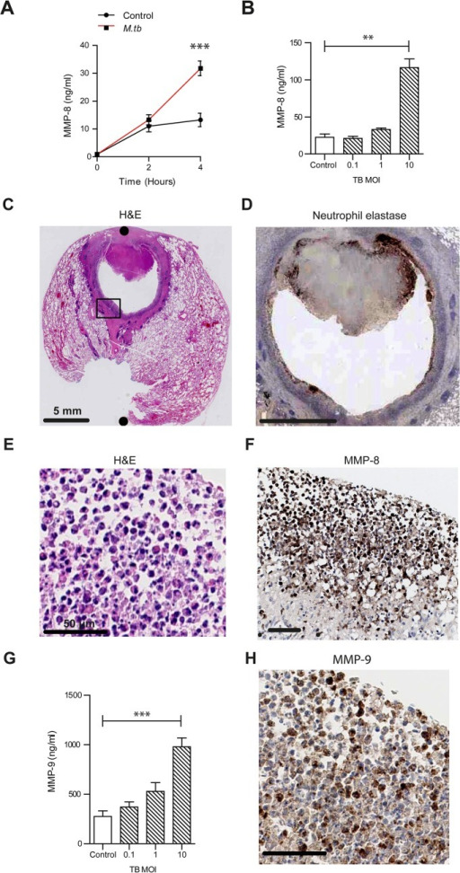 Neutrophil MMP-8 and -9 are upregulated in human TB.(A) Neutrophils were infected with M.tb MOI of 1. MMP-8 secretion was upregulated at 4h. (B) Increasing M.tb MOI caused greater neutrophil MMP-8, analyzed at 4h. Bars represent mean ± s.d. of experiments performed in triplicate and data are representative of a minimum of 2 independent experiments. (C and D) Human TB lung biopsy specimens stained with H&E and anti-neutrophil elastase shows neutrophil infiltration around the cavity wall. Both scale bars represent 5 mm. n = 5. (E and F) Magnified H&E and MMP-8 stains from Fig 1C inset shows neutrophils immunoreactive for MMP-8 around the cavity wall. Both scale bars represent 50 μm. (G) MMP-9 concentrations increase in a dose-dependent manner after M.tb infection at 4 hours. Bars represent mean ± s.d. of experiments performed in triplicate and data are representative of a minimum of 2 independent experiments. *** P<0.001 (H) Biopsy proven M.tb infected human lung specimens were stained for MMP-9 (inset from Fig 1C). Neutrophils were immunoreactive for MMP-9. Scale bar represents 50 μm. Statistical analysis was performed using two-way ANOVA with Bonferroni post-test or One-way ANOVA with Tukey's post-test. **P<0.01, ***P<0.001.